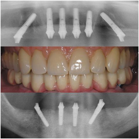 """Mainz MKG - Festsitzender Zahnersatz (Brücke) auf 4-6 speziell angeordneten Implantaten am gleichen Tag nach Entfernung der Restzähne eines Kiefers (""""Teeth in one day"""")"""