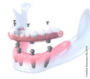 Schöne Zähne in nur 1 Tag. Visual von Straumann.